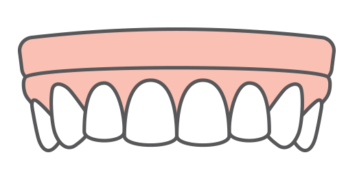 illustration of implant dentures